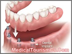 dental implant cost for molar