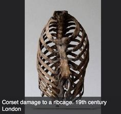 Ribs damaged by the tightness of the corsets worn in the  19th century