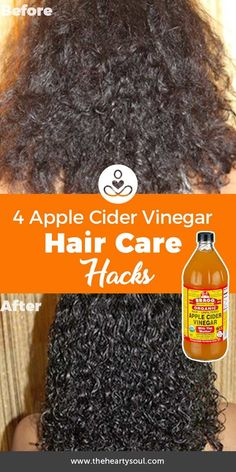 Hair care can be pricey and involve a host of toxic chemicals. Hair care can be pricey and involve a host of toxic chemicals. Apple cider vinegar can be a great homemade ha Apple Cider Vinegar Warts, Organic Apple Cider Vinegar, Homemade Skin Care, Homemade Hair, Overnight Acne Remedies, Cold Home Remedies, Natural Remedies, Skin Care Remedies, Natural Hair Care