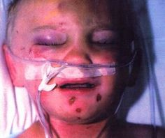 Vaccine-Induced Tissue Scurvy Globally Misdiagnosed as Child Abuse