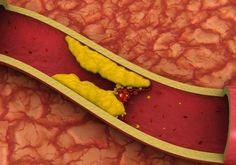 Les niveaux élevés de cholestérol dans le sang sont très mauvais pour notre santé.