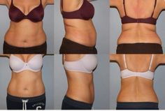"""Look at this amazing before and after shared with us from @hasslpasticsurg: """"This 47 year old mother of 1 had GREAT CoolSculpting results with just 1 treatment to 3 areas.""""  Rules of Engagement: http://vrl.ht/7FC1"""