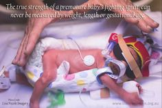 """""""The true strength of a premature baby's fighting spirit, can never be measured by weight, length or gestational age"""".   Photo by Lisa Nicole Imagery  #prematurebaby #lilaussieprems #support #charity"""