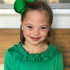 Down Syndrome Awareness Day, Performance Today, Cute Kids, Cute Babies, Down Syndrome Baby, Special Needs Kids, Happy Girls, In Hollywood, Diversity