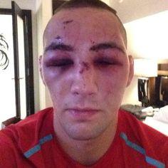Rory #MacDonald  beaten n' bruised  Goddess #LOVES you!?  ;)