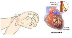 A szívrohamok 80 %-a elkerülhető, ha ezt az 5 dolgot betartod, és ezeket a gyógyszereket örökre elkerülöd! - MindenegybenBlog