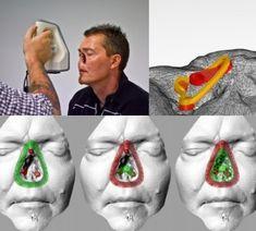 3ders.org - Student's 3D printed facial prosthesis chosen as NZ's James Dyson Award finalist | 3D Printer News & 3D Printing News