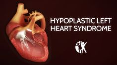 http://www.cincinnatichildrens.org/health/h/hlhs/ Hypoplastic left heart syndrome (HLHS) is one of the most complex cardiac defects seen in newborns and rema...