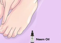 14 Home Remedies To Fight Athlete's Foot Skin Rash Causes, Athlete's Foot, Neem Oil, Home Remedies, How To Apply, Home Health Remedies, Natural Home Remedies