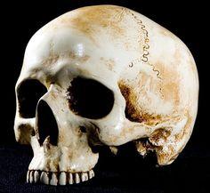 Jawless Skull by skullsdirect on DeviantArt Skull Anatomy, Head Anatomy, Animal Bones, Human Skull, Anatomy Reference, Vanitas, Reference Images, Skull And Bones, Sculpting