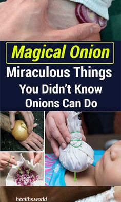 Onions Are a Great Natural Remedy For Common Illnesses – Here Are 12 Unexpected Ways To Use Them th Health World, Health Resources, Fitness Weightloss, How To Get Rid, Onions, Fat Burning, Surgery, Natural Remedies, Smoothie