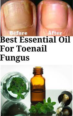 Best essential oil for toenail fungus In 2019 - Healthy Nails Toe Fungus Remedies, Toenail Fungus Cure, Treatment For Toenail Fungus, Fungus Toenails, Black Toenail Fungus, Fungal Nail Infection Treatment, Fungal Infection Skin, Oregano Essential Oil, Nail Designs