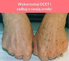 Wykorzystaj OCET i zadbaj o swoją urodę! Aspirin For Hair, Apple Vinegar, Slow Food, Skin Makeup, Good Advice, Baking Soda, Healthy Life, Beauty Hacks, Health Fitness