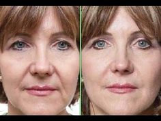 Reduce And Remove Mouth Wrinkles And Laugh Lines On The Face Using Face ...