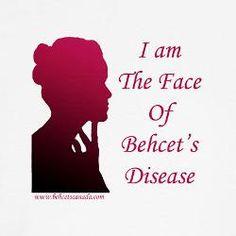 Behcet's awareness