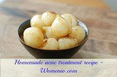 Homemade acne treatment mask recipe Lots of home remixes....