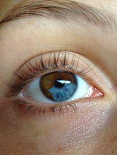 Segmental Heterochromia