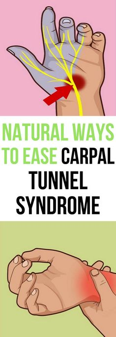 Ease and Relieve Carpal Tunnel Syndrome With Home Remedies