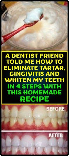 A Dentist Friend Told Me How To Eliminate Tartar, Gingivitis And Whiten My Teeth In 4 Steps With This Homemade Recipe - Strange Things in Life Natural Remedies For Allergies, Natural Remedies For Anxiety, Health Remedies, Home Remedies, Herbal Remedies, Fat Burning Tips, Health Advice, Health Care, Health