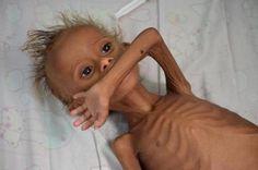 El niño yemení malnutrido del que no sabremos su nombre