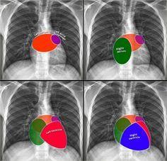 Cardiac anatomy PA