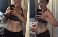 This Woman's Photo Shows What Happens to Your Skin When You Lose 90 Pounds