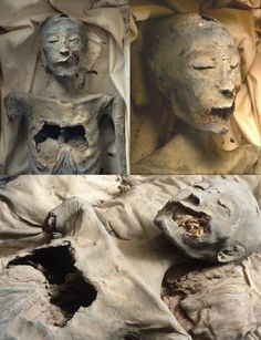 "Mummy of ""the younger lady"" in  kv35 -her midochondrial DNA tests matched that of King Tutankhamun, making her the mother of the boy king. The damage to her face happened prior to death, and was fatal."