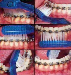 How to Clean Orthodontic Braces at Home !!