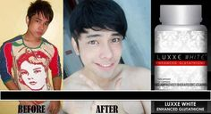 Luxxe White Enhanced Glutathione -Halal approved, FDA approved, Effective whitening supplement For orders contact +639487574995 or call (+63) (2) 738-5310 Visit our page: facebook.com/bellezaluxxe Marriage Separation, Order Contacts, Side Effects, Best Brand, Whitening, Anti Aging, Advice, Facebook, Health