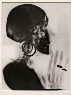 Meret Oppenheim, X-ray of My Skull, 1964. Gelatin silver print (1913-1985) SFMOMA.