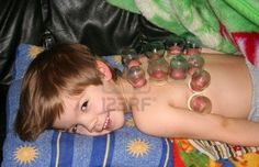 Cupping Therapy on children