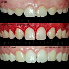 Gingivectomy and gingivoplasty: Safe treatments for gum disease