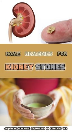 The commonly called kidney stones are in fact small crystals composed of calcium salts, struvite or uric acid. They are usually located on the kidneys or on the bladder and do not present any symptoms unless they are dislodged. Kidney Detox, Kidney Health, Holistic Remedies, Natural Health Remedies, Health And Wellness, Health Tips, Health Benefits, Kidney Stone Relief, Diabetes Remedies
