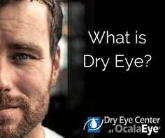 Eye discomfort. Redness. Constantly feeling like something is in your eye. Sound familiar? These may be signs of dry eye. Discover your options for relief: http://www.ocalaeye.com/dry-eye-ocala.htm #fyEYE