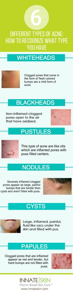 Different types of acne can sometimes require different treatments. Knowing the differenttypes of acne you may have can be a key piece of the puzzle towardsclear skin. In general, acne and all of its variations are caused by oxidized sebum and clogged pores. Here is a list of the main types of acne and a […]