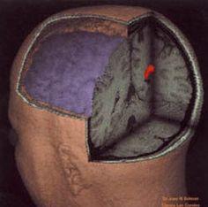 El cerebro como estructura disipativa / alejandromelo00 | MyOpenArchive