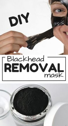DIY Blackhead removal mask to get rid of blackheads most effectively Get rid of blackheads with this super easy DIY Face mask recipe! This homemade face mask only requires TWO ingredients & is the BEST for blackheads on nose! Mascarillas Peel Off, Peel Off Mask, Face Mask For Blackheads, Get Rid Of Blackheads, Removal Of Blackheads, Pimples, Mascarilla Diy, Diy Beauty Mask, Beauty Skin