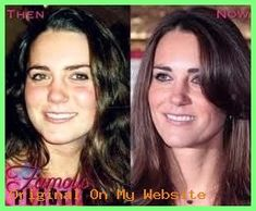 Nose correction before and after Kate Middleton& nose job ? Kate Middleton, Rhinoplasty Before And After, Medical Wallpaper, Abdominal Muscles, Vegan, Plastic Surgery, Lose Weight, Face, Beauty