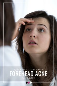 Your ultimate guide on how to get rid of forehead acne naturally and effectively!
