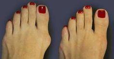Un juanete es una prominencia ósea que crece sobre la articulación del dedo…