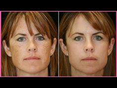 How To Get Rid Of Hyper Pigmentation Dark Spots Brown Spots Dark Upper Lip With Naturally Youtube Skin Resurfacing Laser Skin Peeling Skin