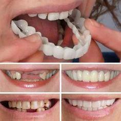 Perfect Teeth, Perfect Smile, Smile Teeth, Teeth Care, Smile Smile, Smile Dental, Misaligned Teeth, Teeth Braces, Braces Smile