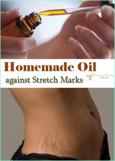 This homemade oil is wonderful when it comes to reducing stretch marks. It is based on numerous seeds and essential oils