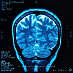 Read about a study showing that MS patients suffering autoimmune comorbidities have more severe brain tissue damage.