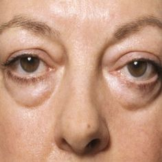 Under eye bags refer to mild swelling or puffiness in the tissues around the eyes. Here are some of the common causes of under eye bags and how to treat them. Under Eye Wrinkles, Prevent Wrinkles, Looks Dark, Face Exercises, Under Eye Bags, Home Treatment, Puffy Eyes, Tips Belleza, Beauty Tricks