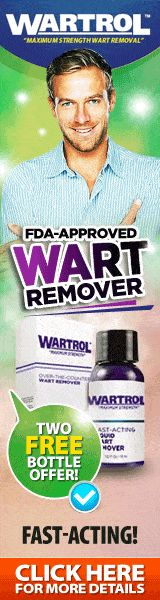 You suffer from verruca on your feet? Warts on feet can be quite painful and stubborn. Find out how to treat your plantar warts on your soles effectively. Foot Warts, Warts On Hands, Warts On Face, Facial Warts, Natural Treatments, How To Get Rid, How To Find Out, How To Remove, Home Remedies