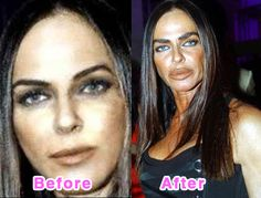 Celebrity Plastic Surgery Disasters: Before And After