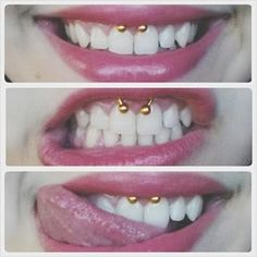 more than a medusa piercing now I want a smiley piercing. cute.