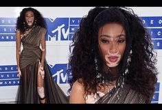 Winnie Harlow joins Beyonce's entourage at the MTV VMAs