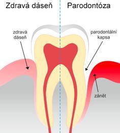 Parodontóza a ochorenie srdca má toho spoločného viac ako si myslíte. Predítite tomu skôr.